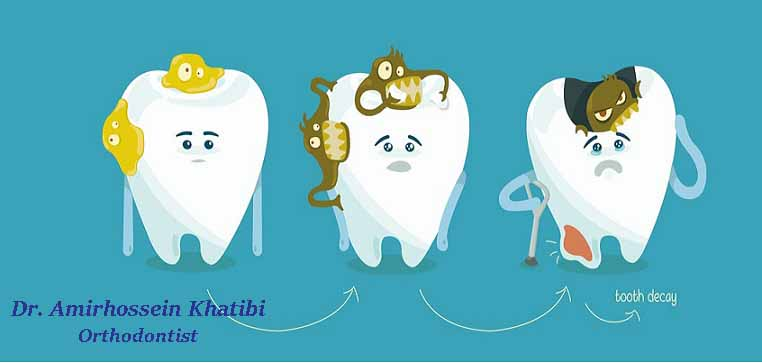 Tooth Decay Graphic